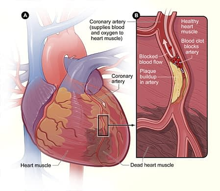 Source: National Heart, Lung, and Blood Institute; National Institutes of Health; U.S. Department of Health and Human Services