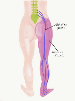 Sciatica diagram